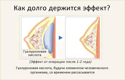 увеличение груди петрозаводск
